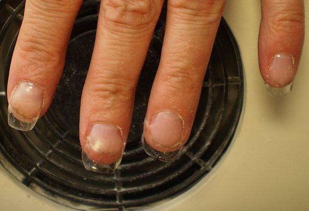 Почему болят ногти под нарощенными ногтями