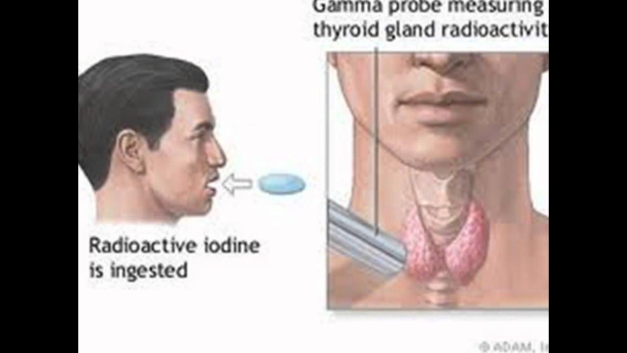 Как лечат щитовидную железу радиоактивным йодом