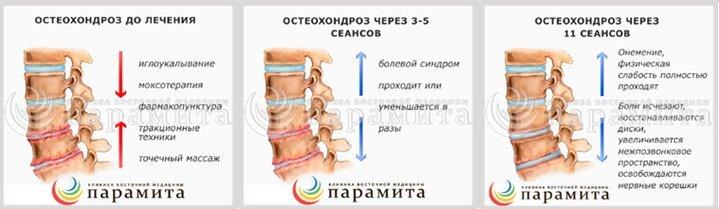 Лечение остеохондроз позваночника