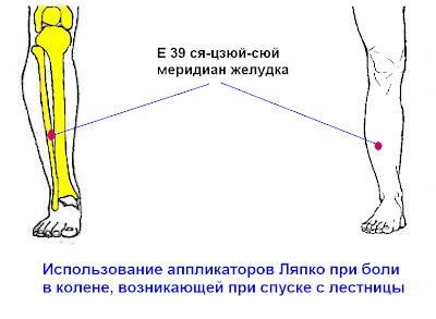Как лечить боль в колене при ходьбе по лестнице