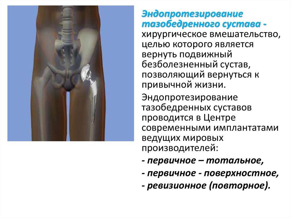 Эндопротез тазобедренного сустава от производителя
