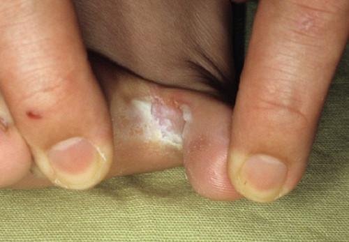 Симптомы инфекции грибка на пальце ноги