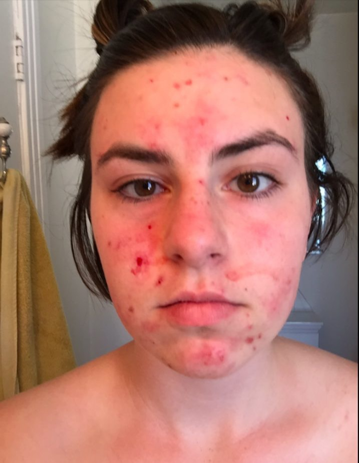 Dating a guy with severe acne