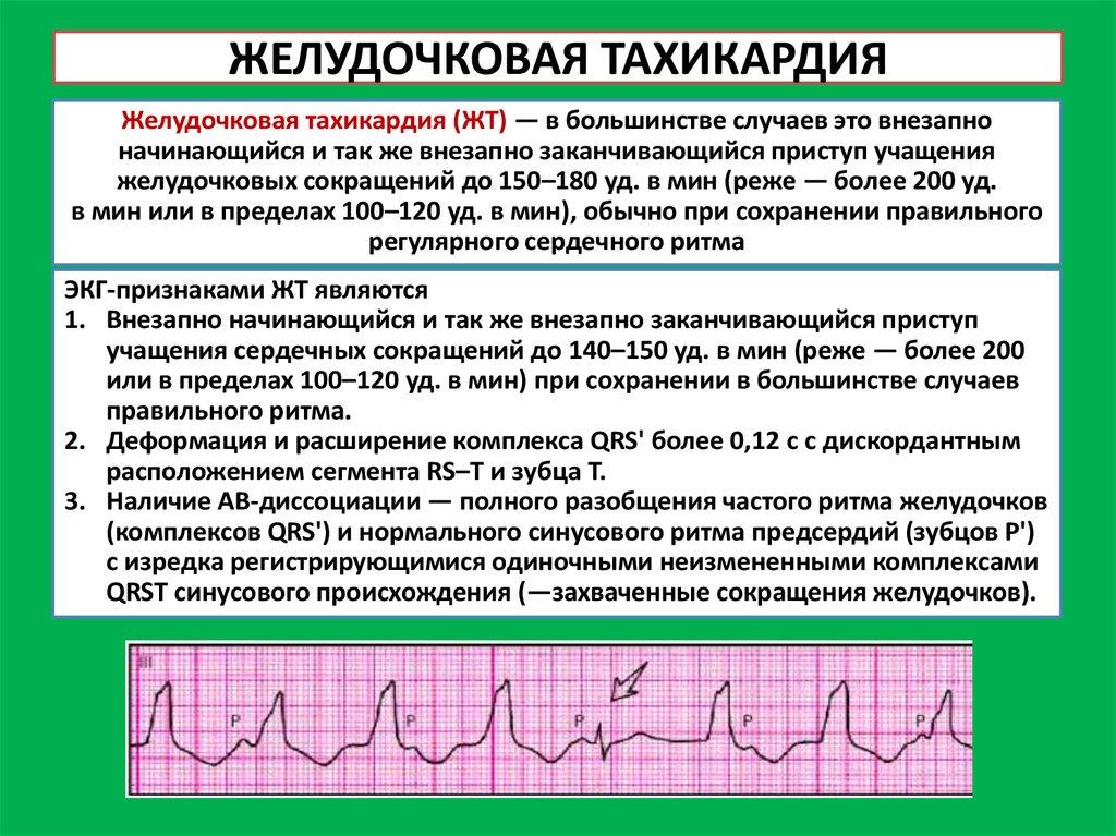 Как убрать аритмию в- zdorovymbudru