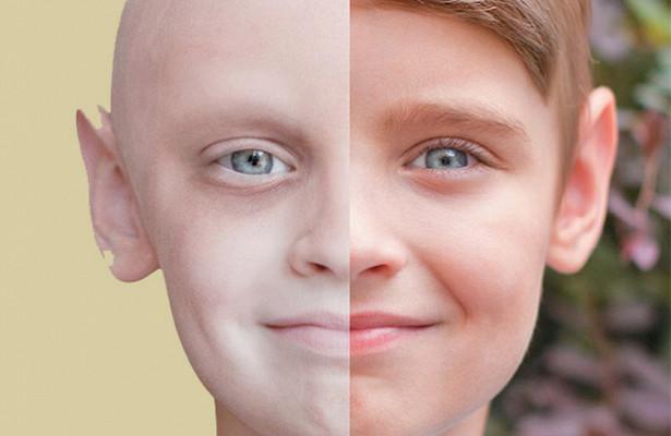 Рак— неприговор: факты обонкологии, которые должен знать каждый