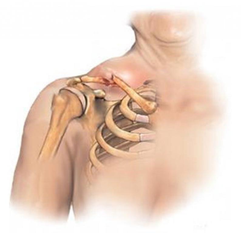 ем связаны шея и плечо