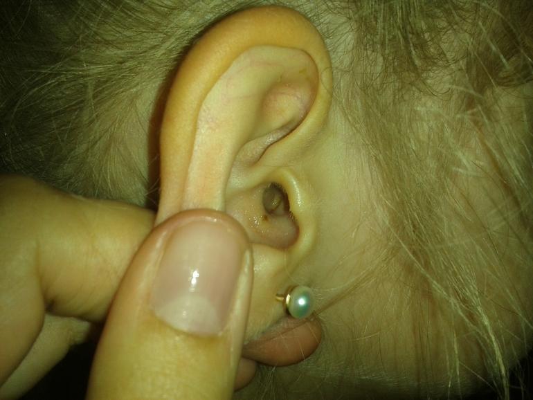 Что делать когда болит ухо внутри у ребенка