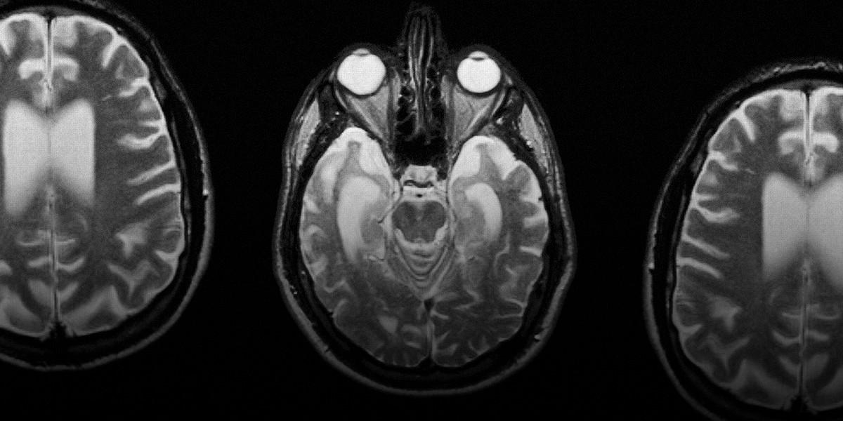 Болезнь Альцгеймера Ученые близко знакомятся с тем как он начинается и как его остановить