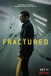 Перелом / Fractured