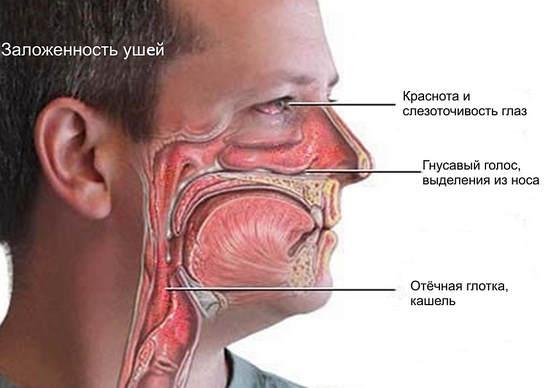 Болит нос при насморке - rinit03ru