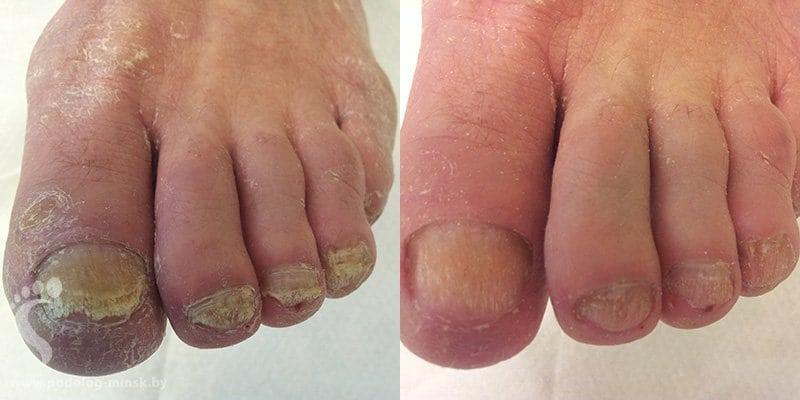 Как избавиться от грибка пальцах рук