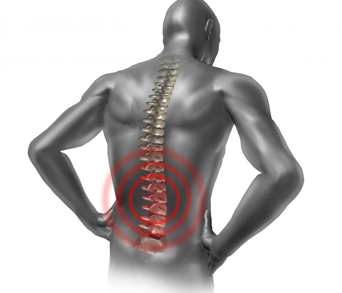 Write my symptoms of spondylolisthesis of l5 s1